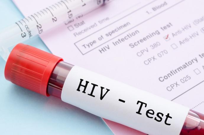 Pierścień chroniący przed HIV – wynalazek w służbie zdrowia