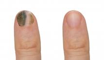 Czerniak paznokcia – czy wiesz, jak go rozpoznać?